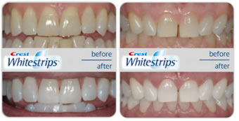 crest whitening strips review before and after