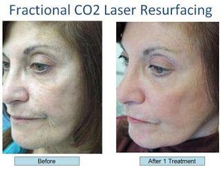 fractional laser skin treatment reviews