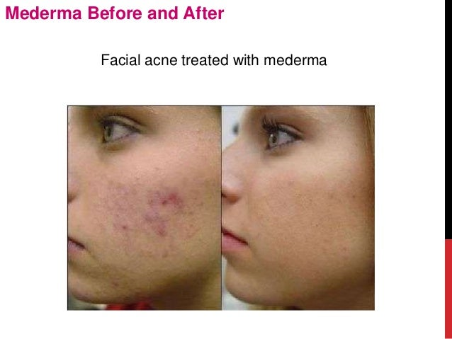mederma reviews before and after